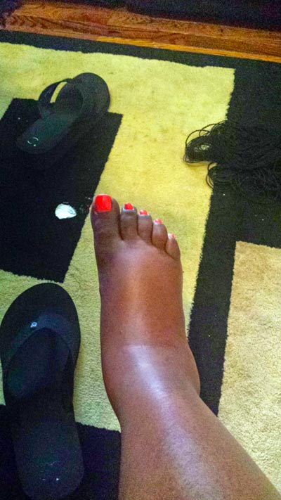 This was after waking up and making some breakfast. My feet would get this swollen.